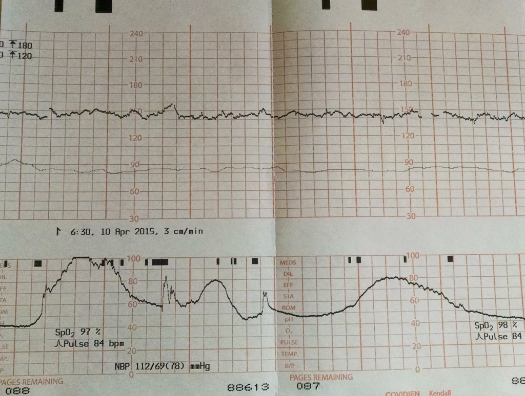 We kept a stack of the printouts from the monitor that measured our heart rates and my contractions.